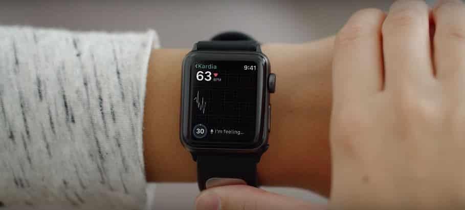 apple watch kardiaband